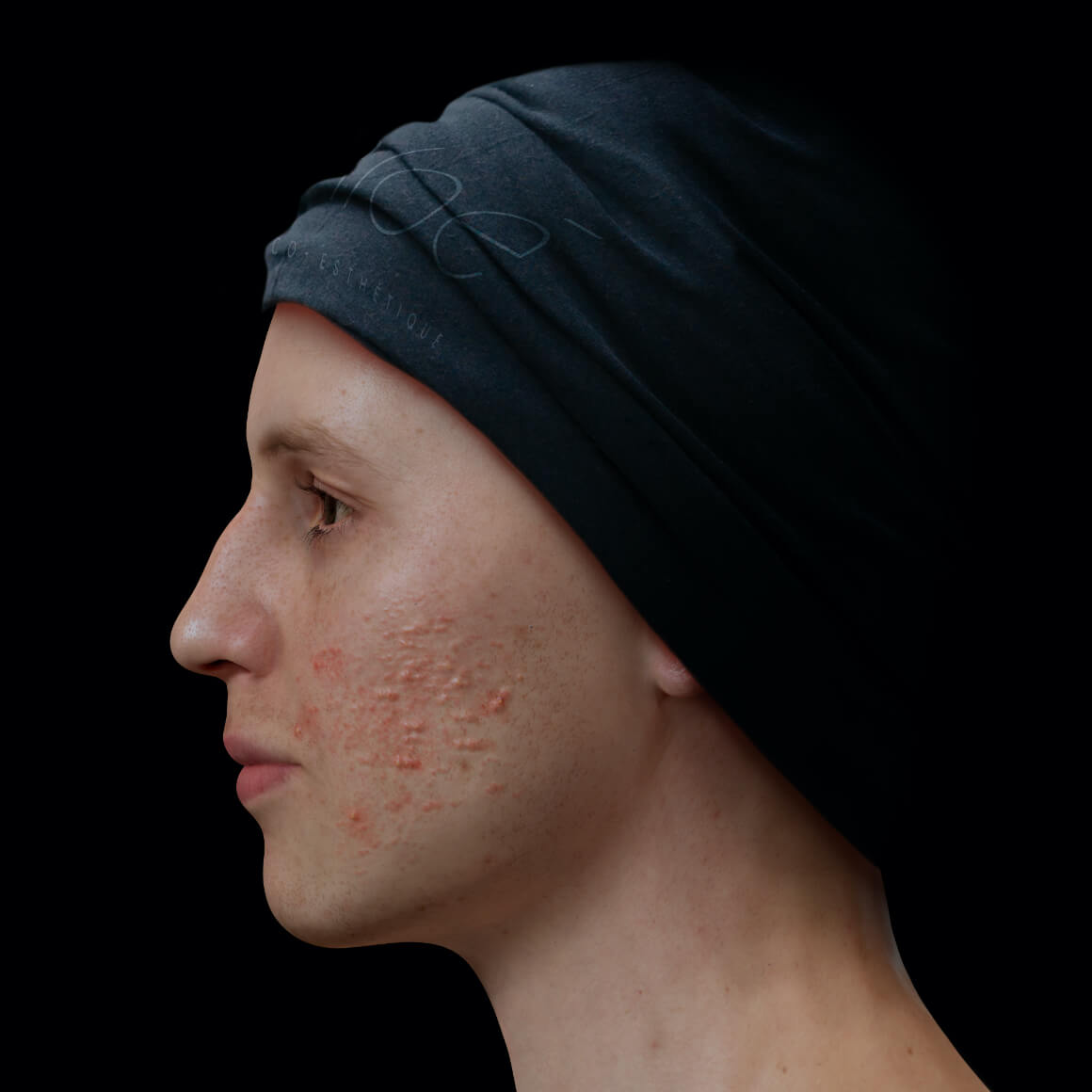 Male patient at Clinique Chloé positioned sideways with active acne on his face