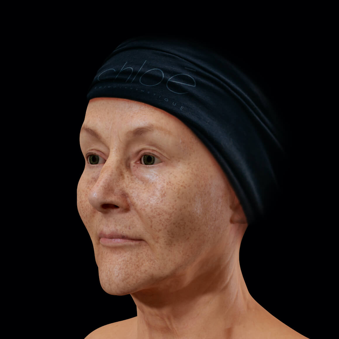 A female patient from Clinique Chloé positioned at an angle with pigmented lesions, or dark spots, on her entire face