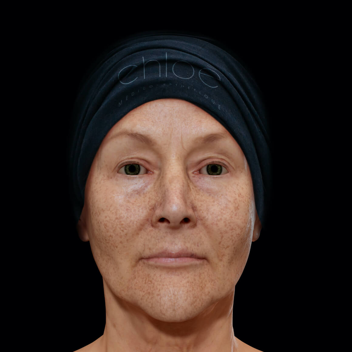 A female patient from Clinique Chloé facing front with pigmented lesions, or dark spots, on her entire face