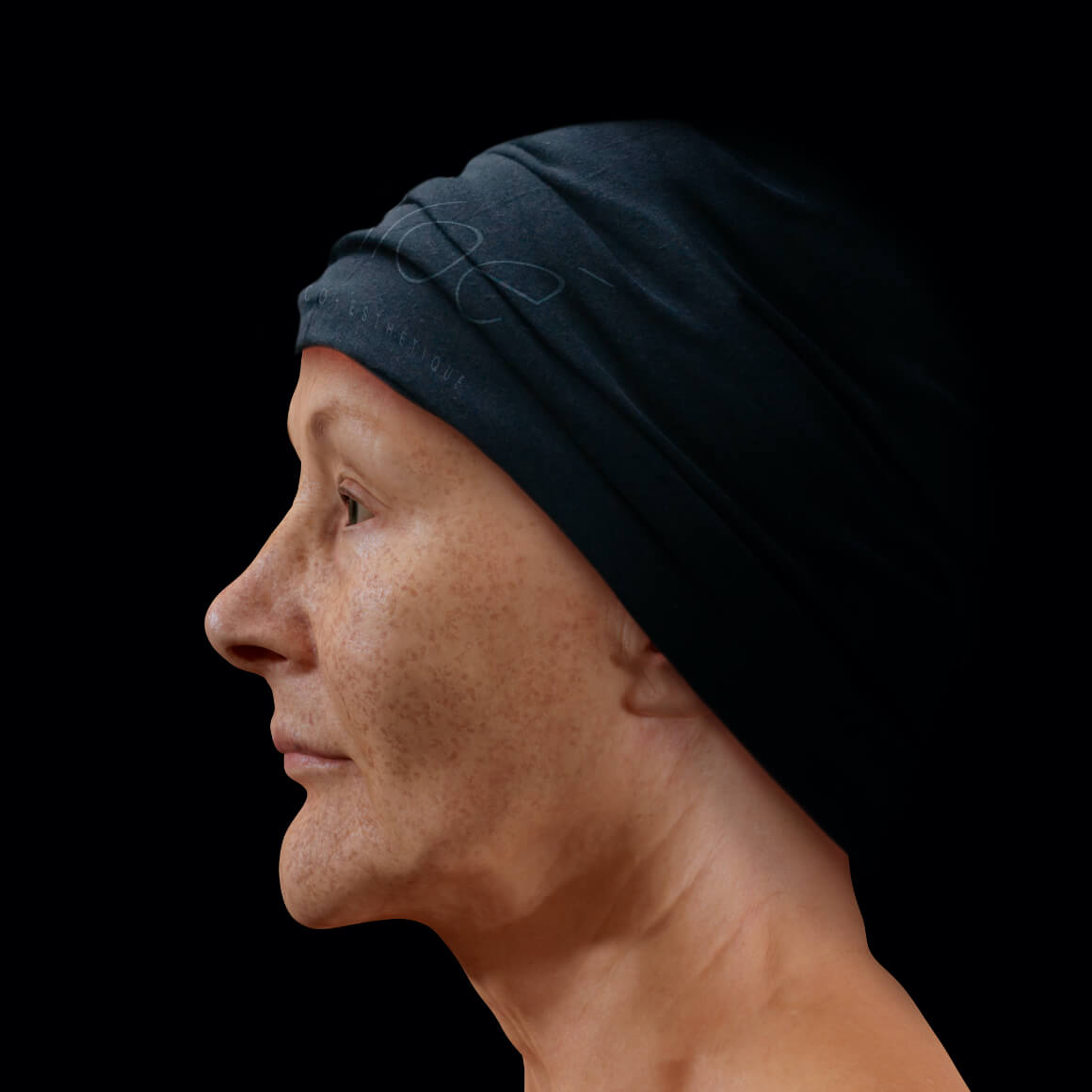 A female patient from Clinique Chloé positioned sideways with pigmented lesions, or dark spots, on her entire face