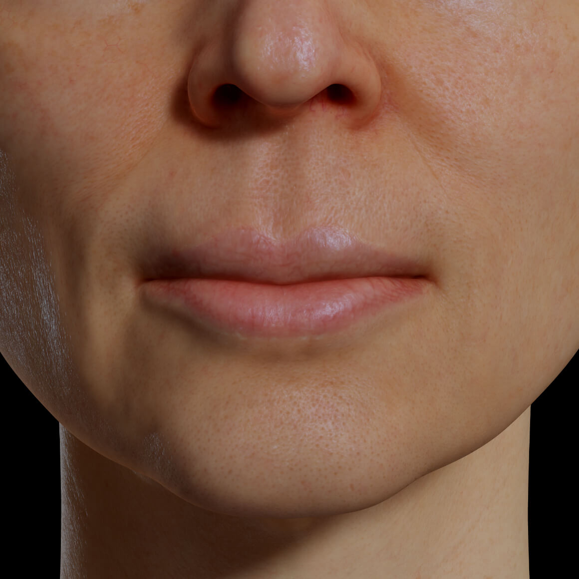 Female patient at Clinique Chloé facing front showing hydrated lips after a mesotherapy treatment
