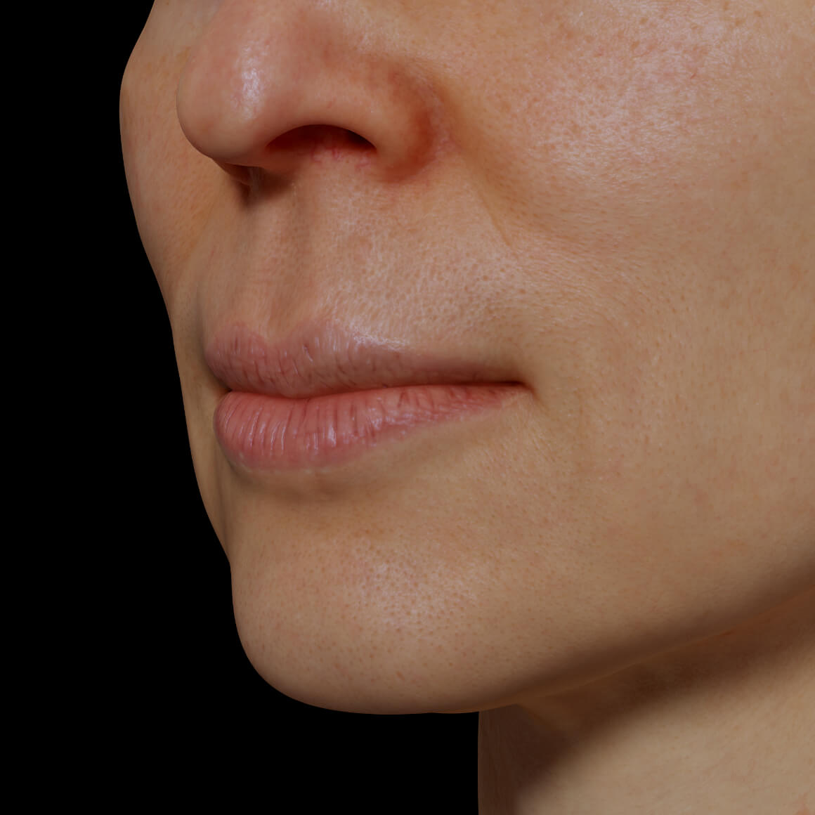 Angled female patient from the Clinique Chloé showing dry and dehydrated lips