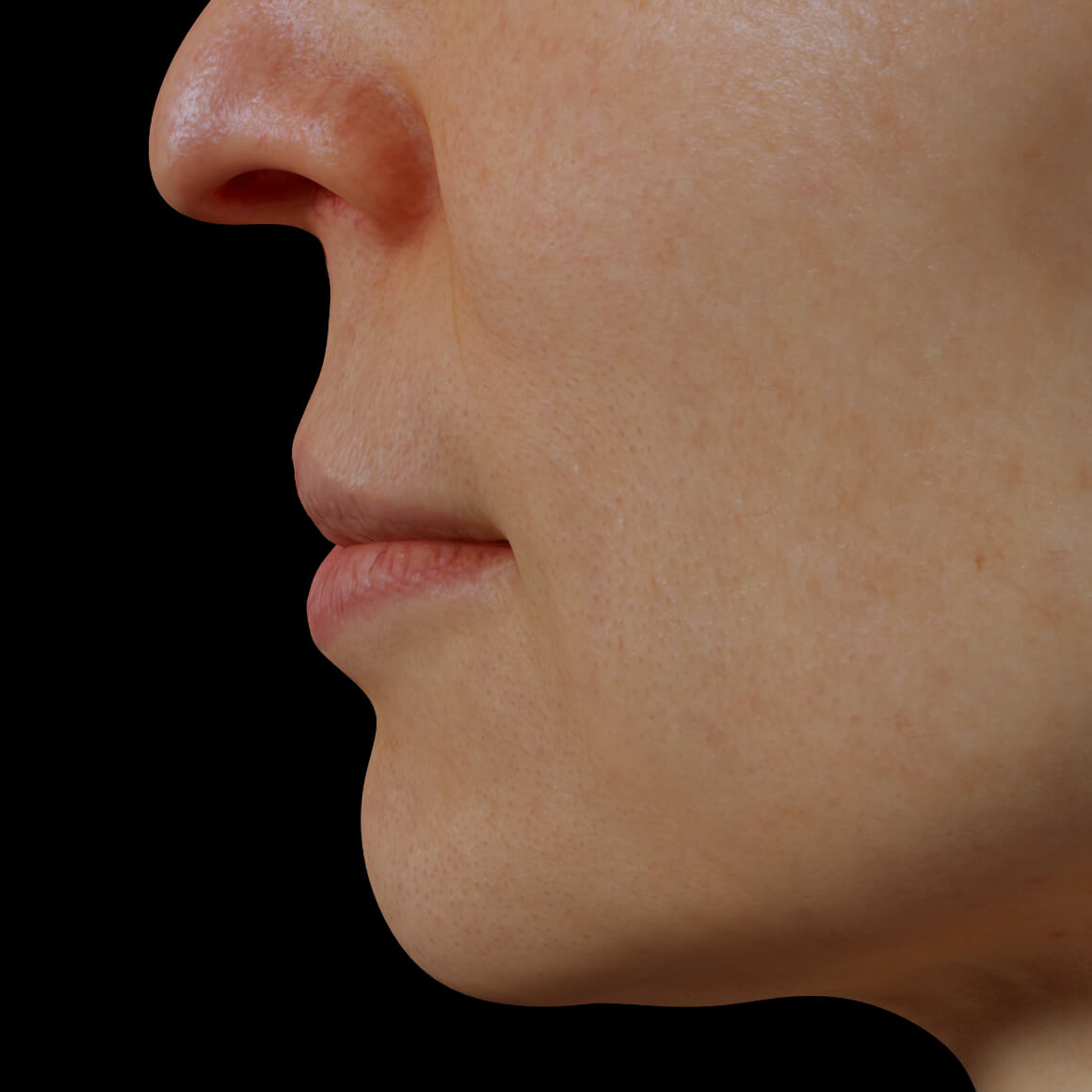 A female patient from the Clinique Chloé positioned sideways showing dry and dehydrated lips
