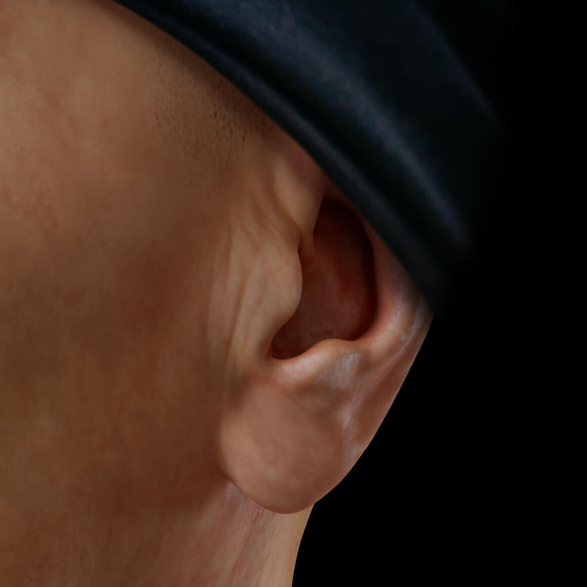 Left earlobe of a patient from Clinique Chloé positioned at an angle after dermal filler injections for earlobe correction