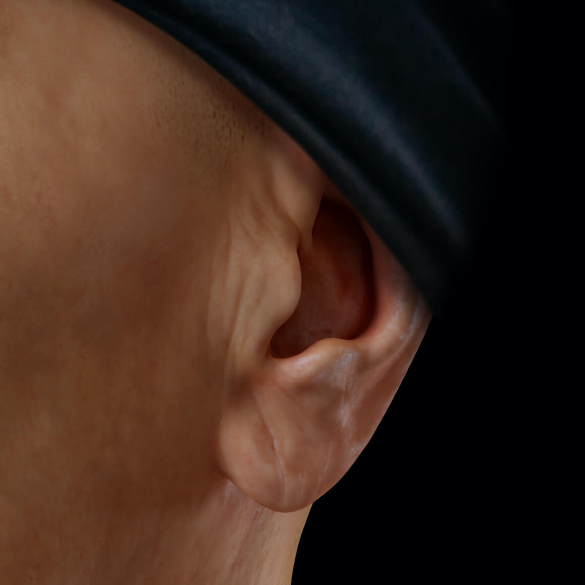 Left earlobe of a patient from Clinique Chloé positioned at an angle showing sagging skin and wrinkles