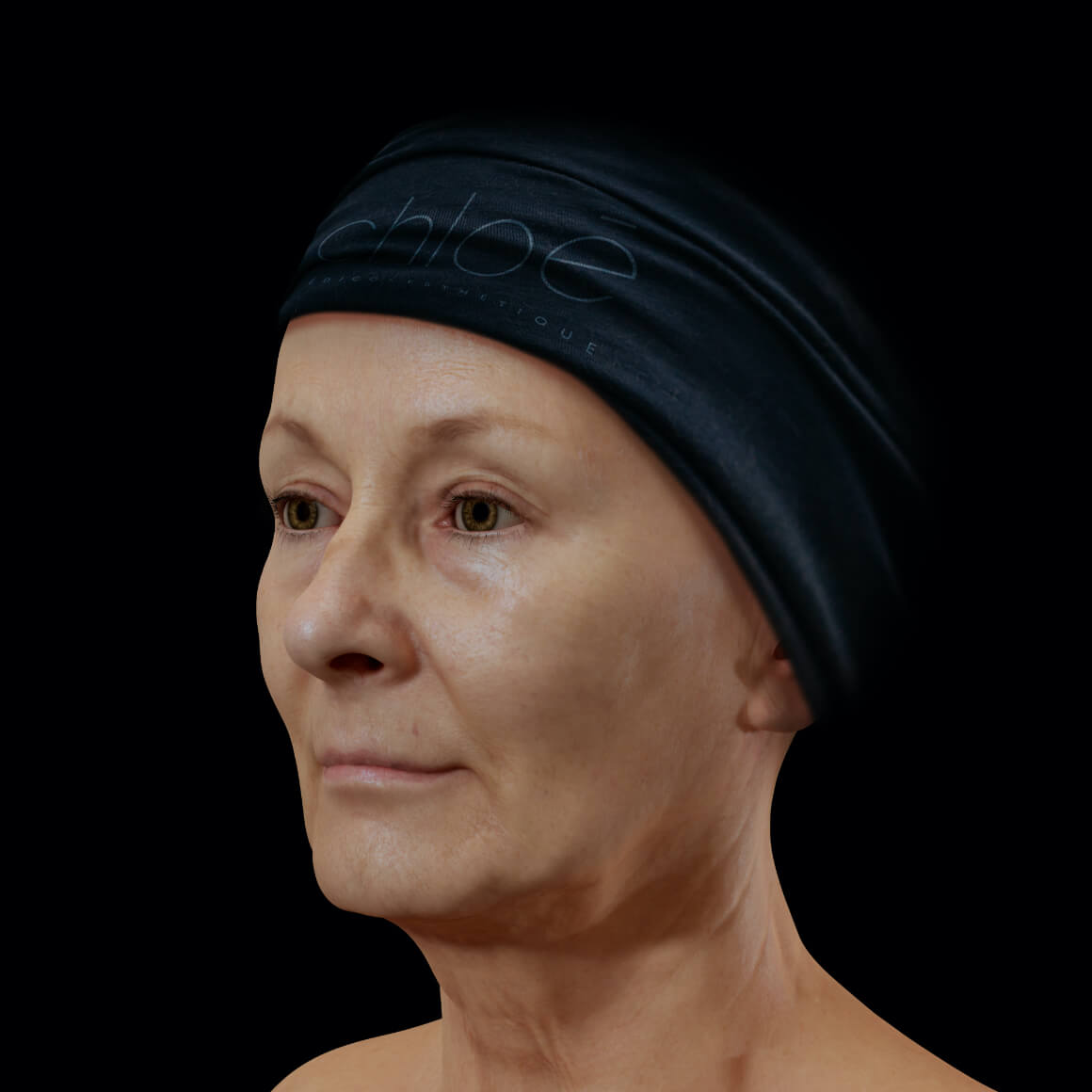 Female patient at Clinique Chloé positioned at an angle after fractional laser treatments for eyelid lift