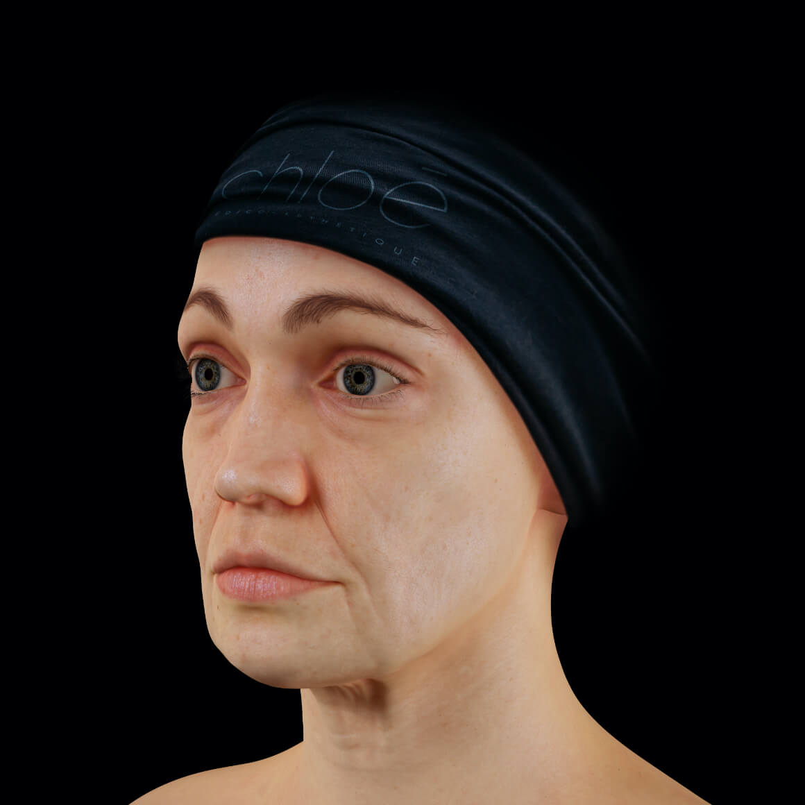 Female patient from Clinique Chloé positioned at an angle showing facial skin laxity