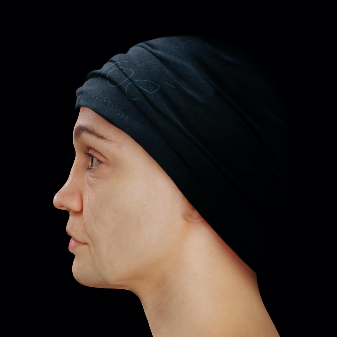 Female patient from Clinique Chloé positioned sideways showing facial skin laxity