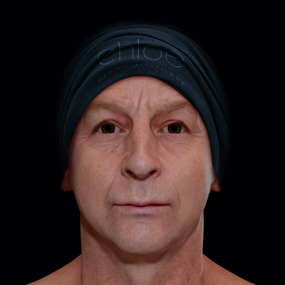 Male patient from Clinique Chloé facing front after fractional laser treatments for facial skin laxity