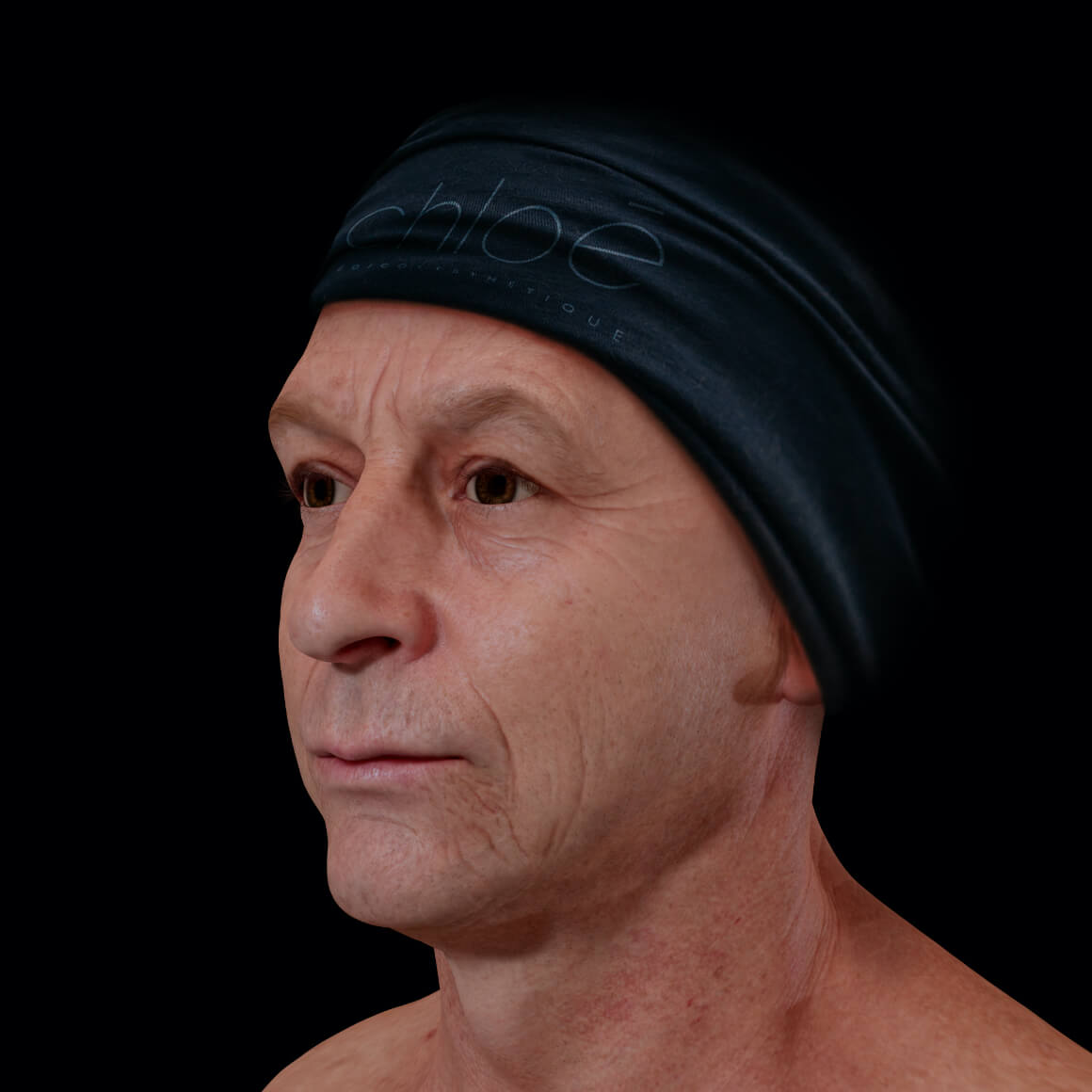 Male patient from Clinique Chloé positioned at an angle showing facial skin laxity