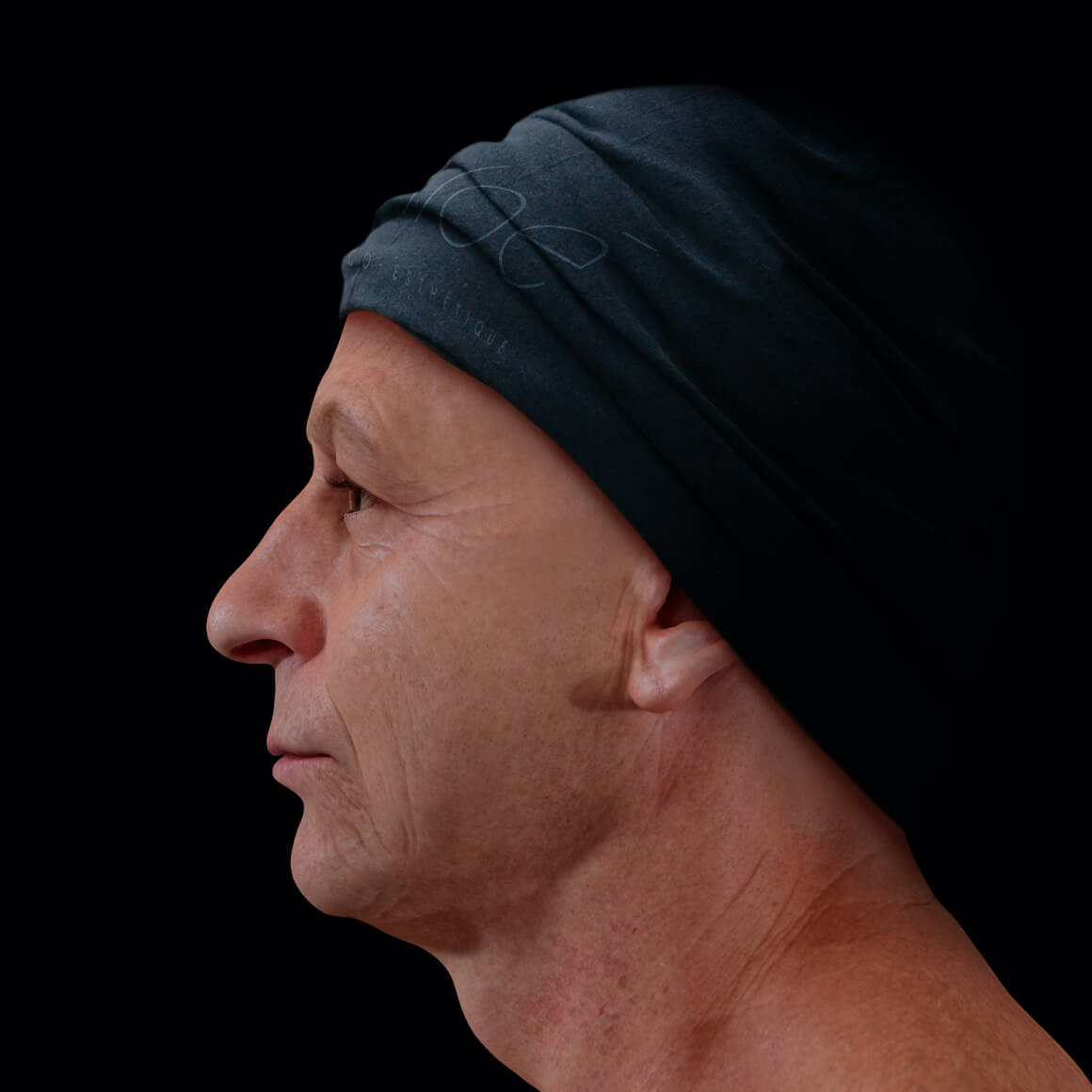 Male patient from Clinique Chloé positioned sideways showing facial skin laxity