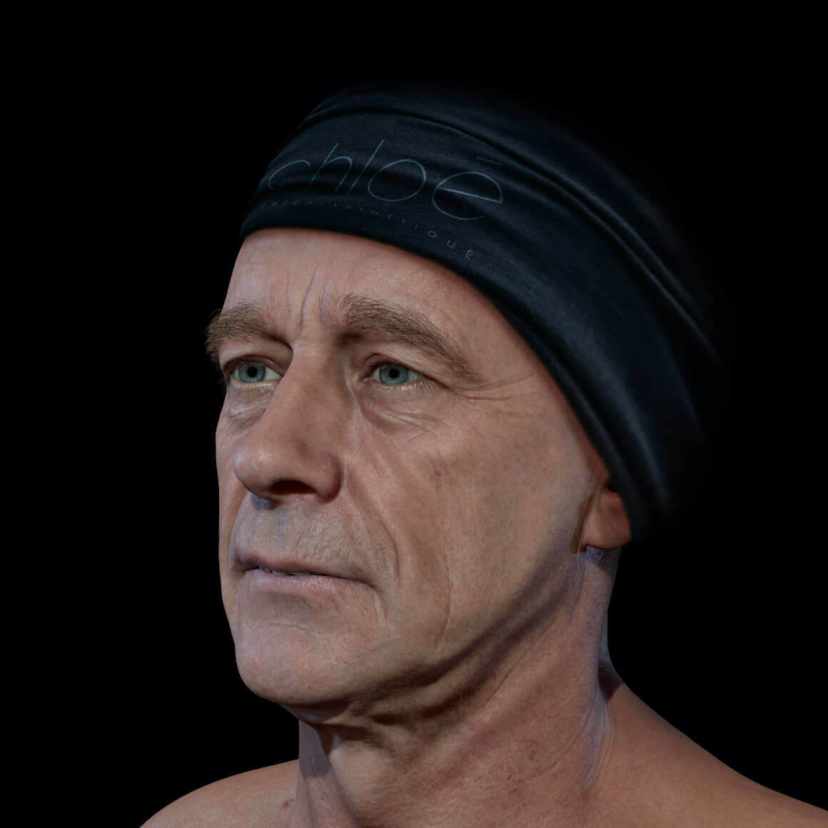Male patient at Clinique Chloé positioned at an angle showing deep wrinkles on his face