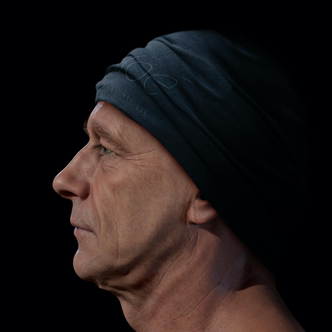Male patient at Clinique Chloé positioned sideways showing deep wrinkles on his face