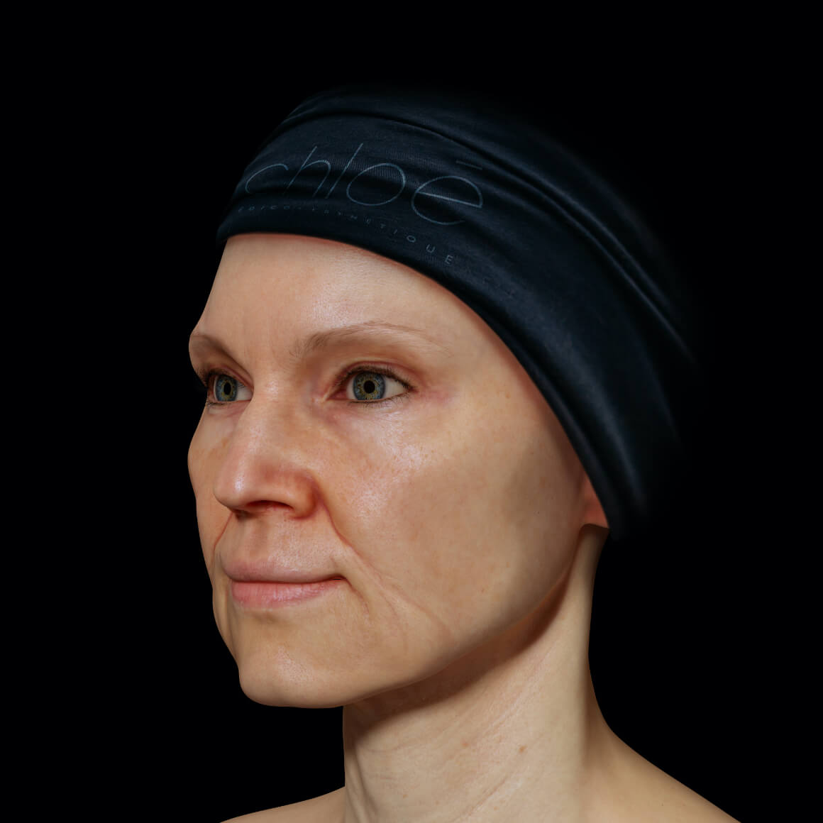 Female patient from Clinique Chloé positioned at an angle showing pronounced nasolabial folds and marionette lines