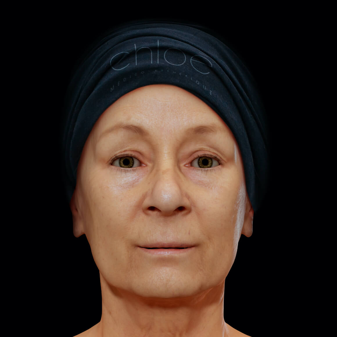 Woman, patient at Clinique Chloé, facing front, after mesotherapy treatments for wrinkle reduction