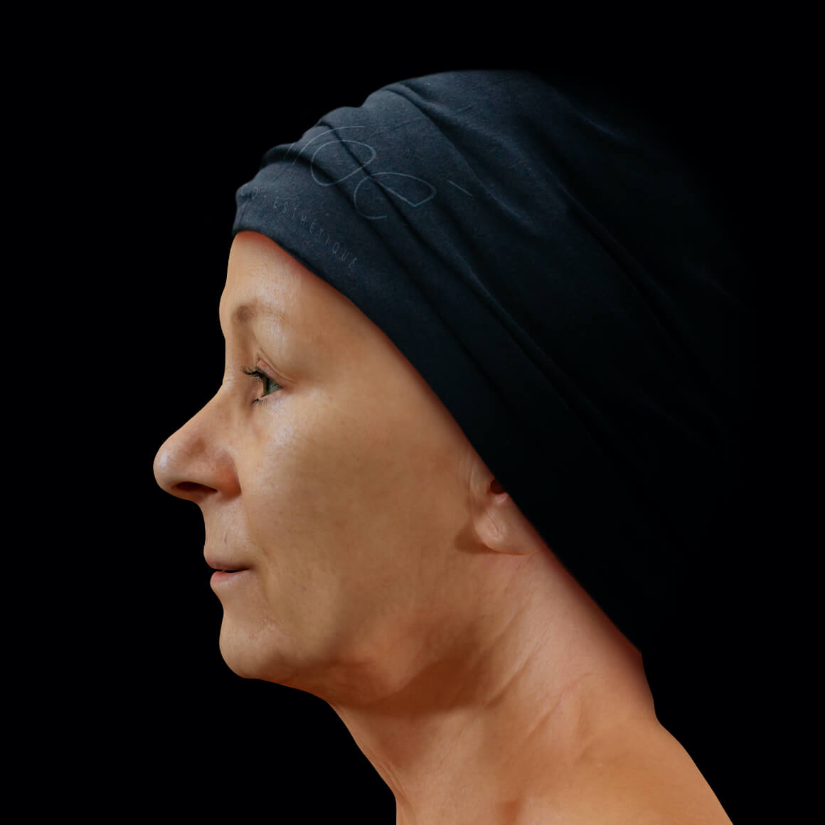 Woman, patient at Clinique Chloé, positioned sideways, after mesotherapy treatments for wrinkle reduction