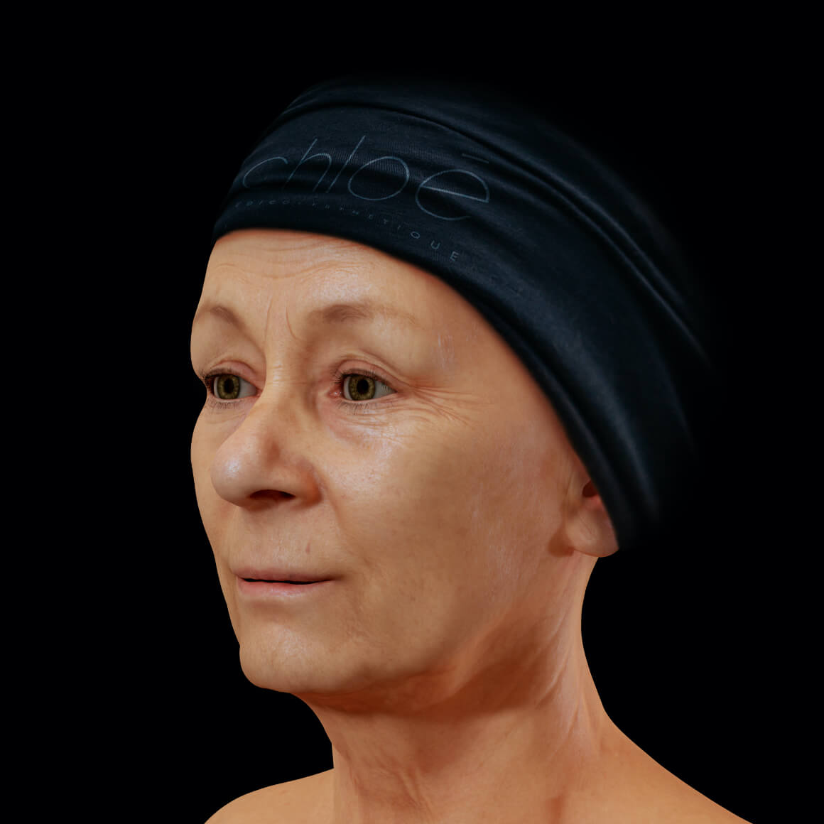 Woman, patient at Clinique Chloé, positioned at an angle, showing fine lines and wrinkles on the face
