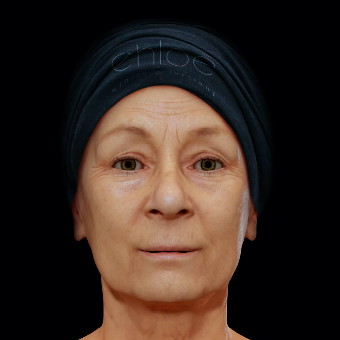 Woman, patient at Clinique Chloé, facing front, showing fine lines and wrinkles on the face