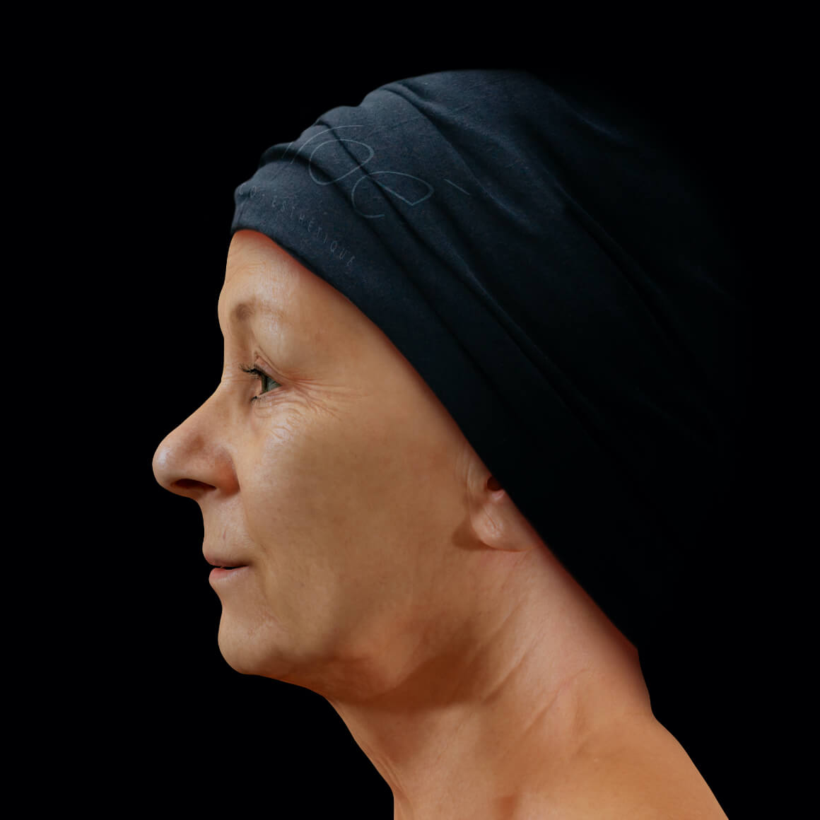 Woman, patient at Clinique Chloé, positioned sideways, showing fine lines and wrinkles on the face