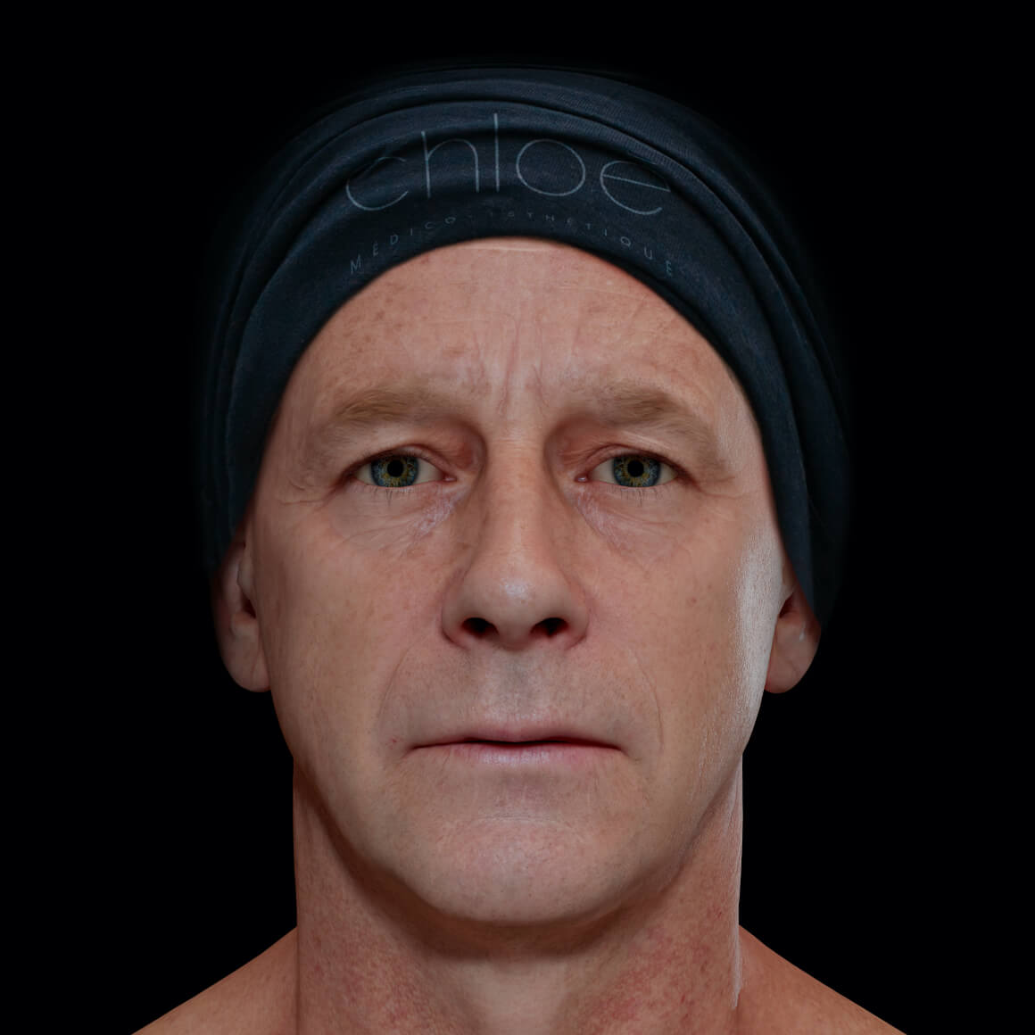 Male patient at Clinique Chloé facing front after platelet-rich plasma treatments, or PRP, for wrinkle reduction