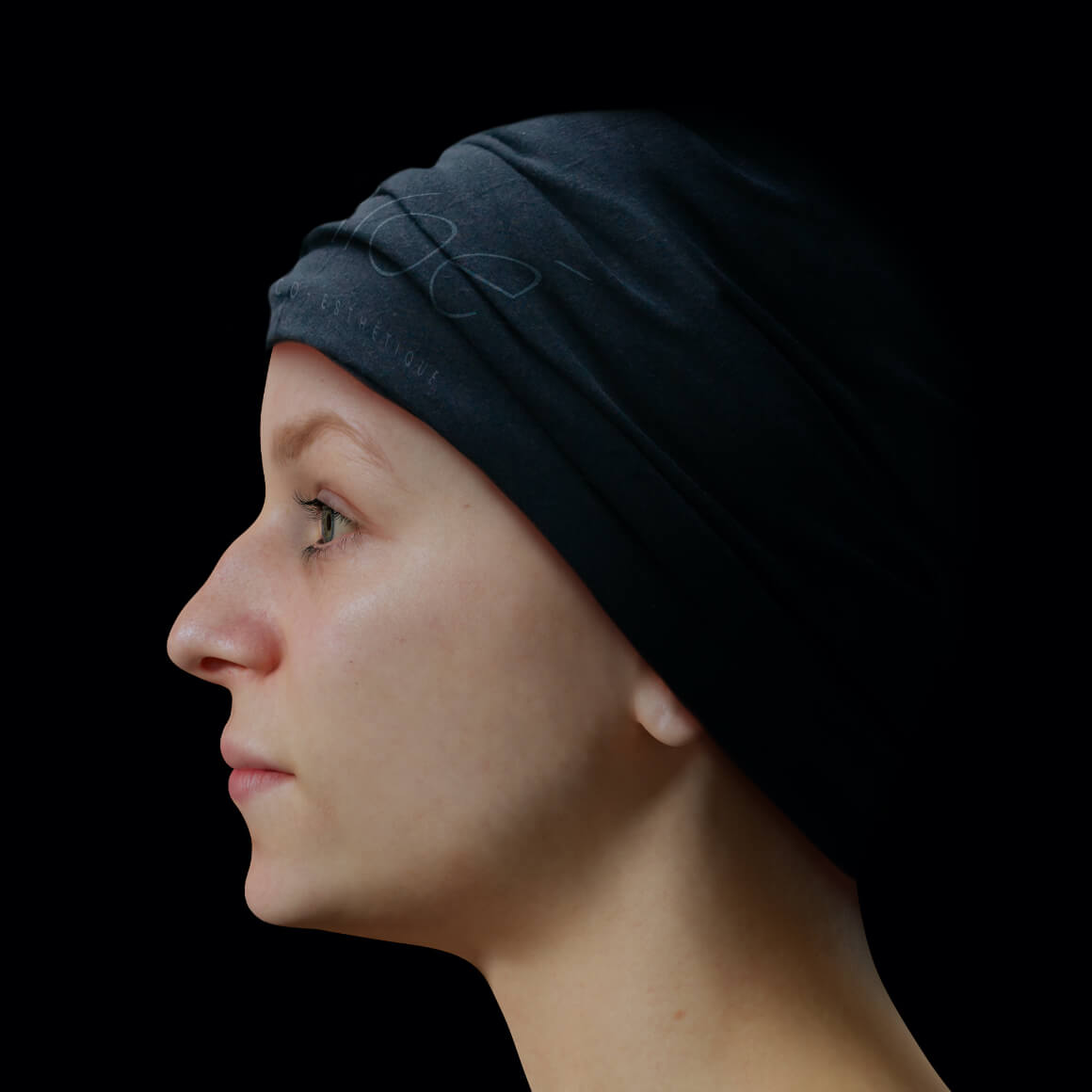 Female patient at Clinique Chloé with a poorly defined jawline, side view