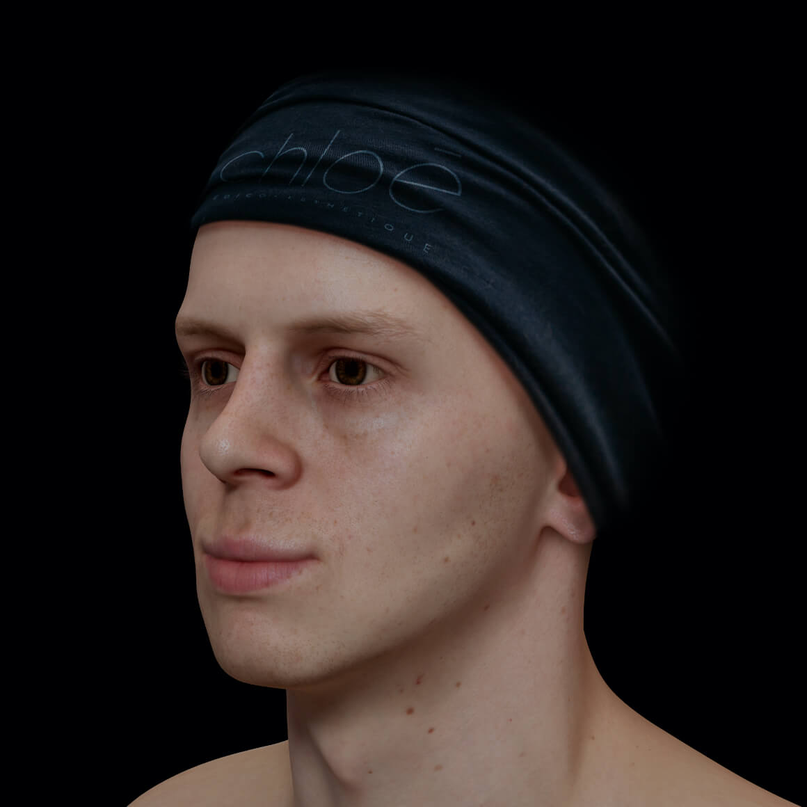 Male patient at Clinique Chloé positioned at an angle after Radiesse injections for jawline definition