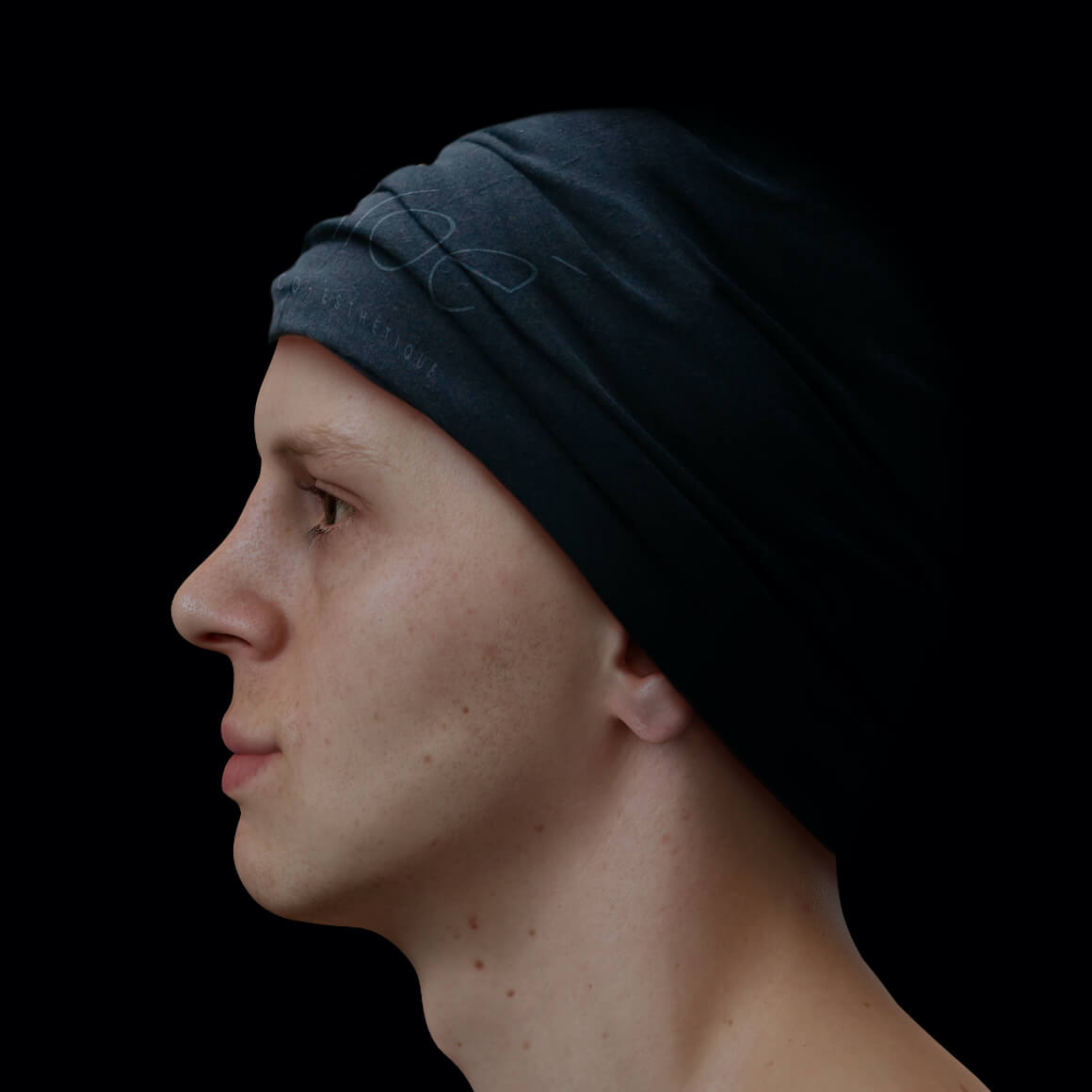 Male patient at Clinique Chloé positioned sideways after Radiesse injections for jawline definition