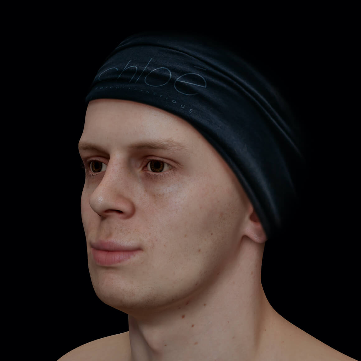 Male patient at Clinique Chloé positioned at an angle with a poorly define jawline