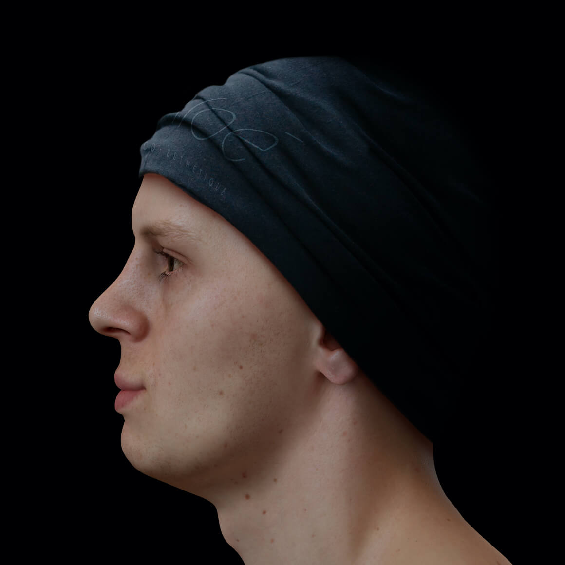 Male patient at Clinique Chloé positioned sideways with a poorly define jawline