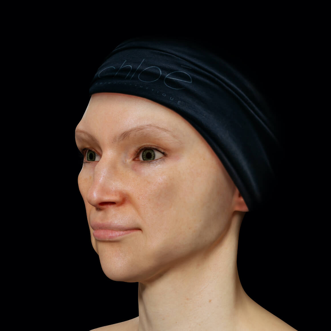 Angled Clinique Chloé female patient after fractional laser treatments to erase melasma