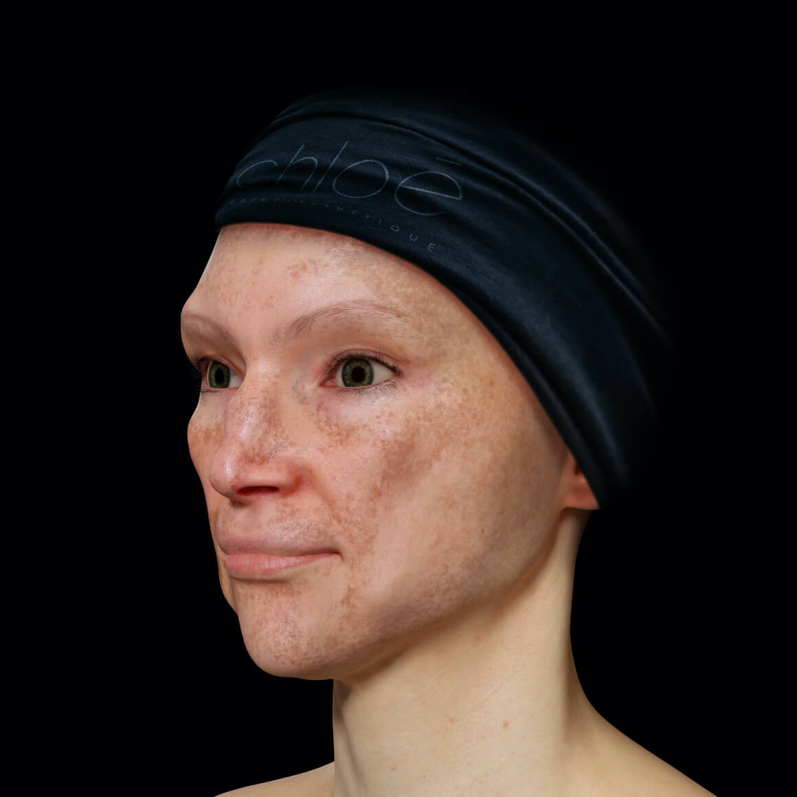Angled Clinique Chloé female patient with melasma on her face