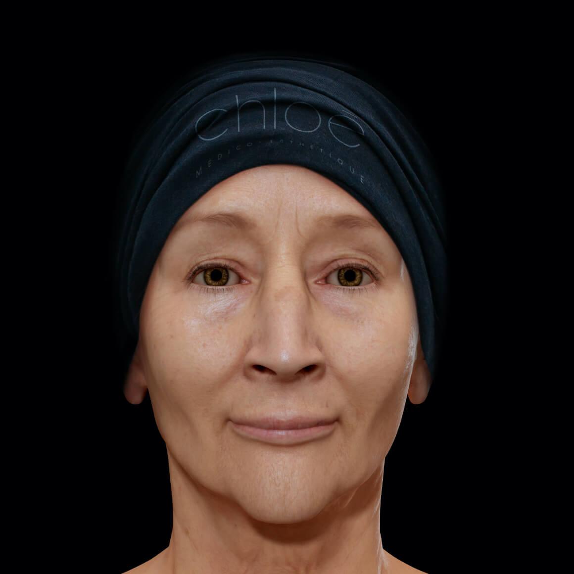 Female patient at Clinique Chloé front view after IPL photorejuvenation treatments for melasma