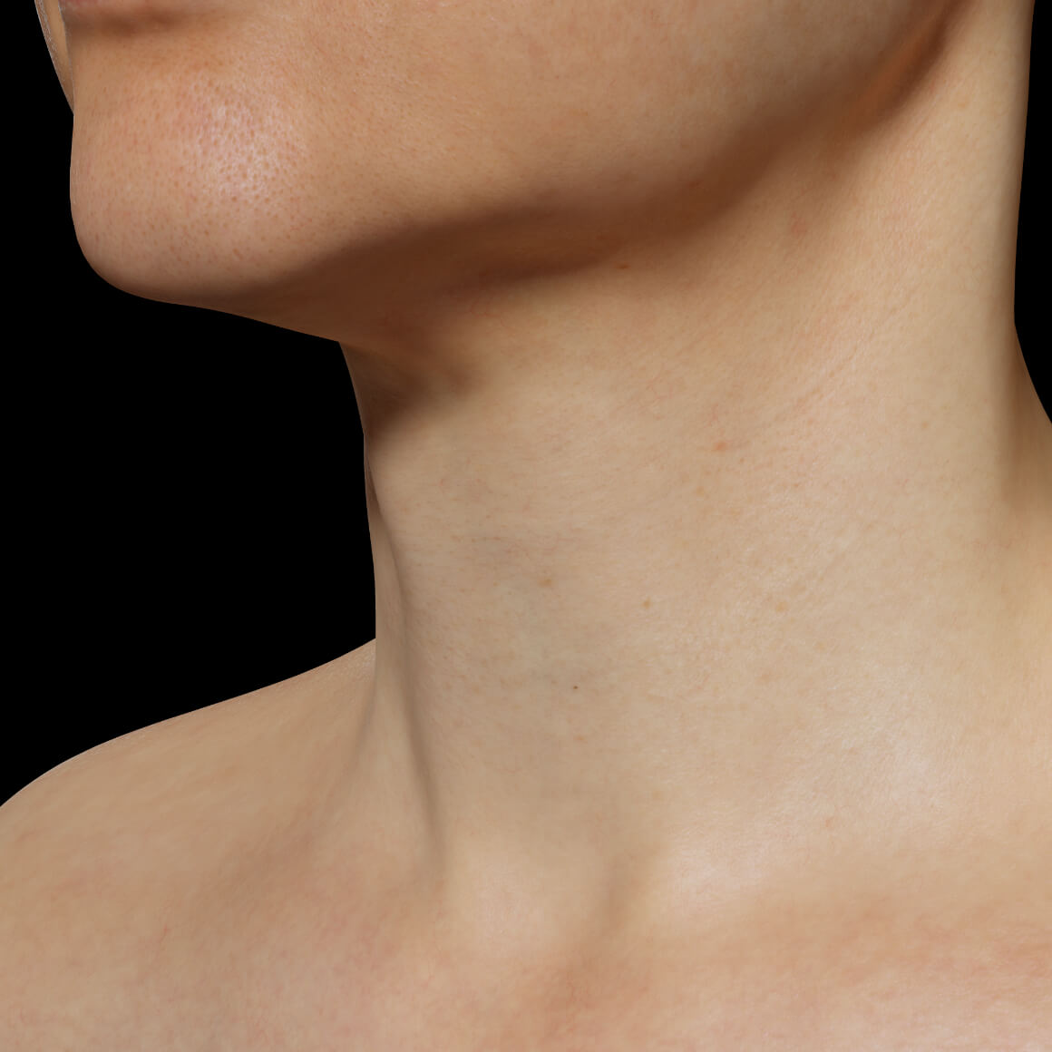 A female patient at Clinique Chloé positioned at an angle after Fotona 4D laser treatments for skin tightening of the neck