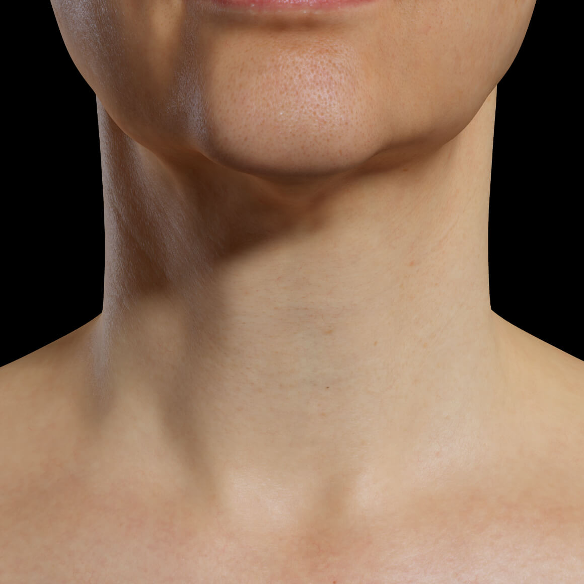 A female patient at Clinique Chloé facing front after Fotona 4D laser treatments for skin tightening of the neck