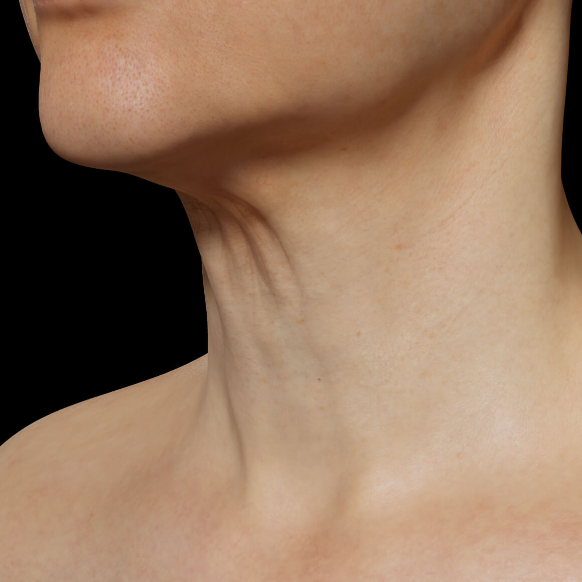 A female patient at Clinique Chloé positioned at an angle showing skin laxity in the neck area