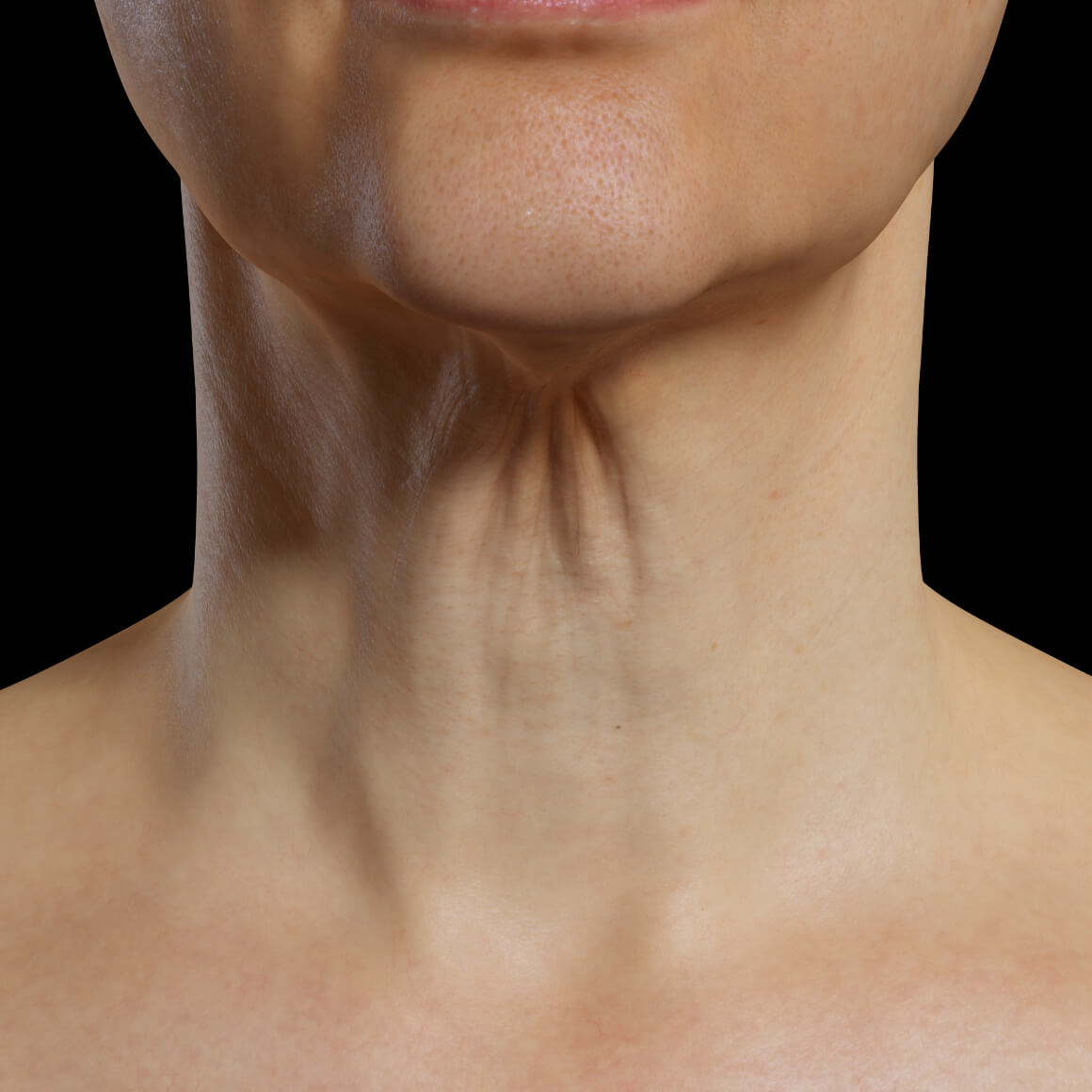 A female patient at Clinique Chloé facing front showing skin laxity in the neck area