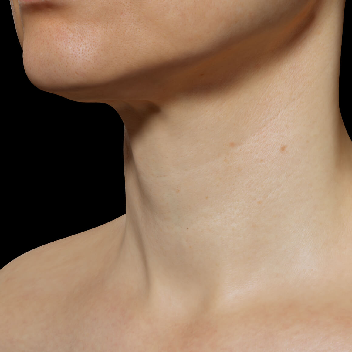 A female patient at Clinique Chloé positioned at an angle after mesotherapy treatments for the rejuvenation of the neck