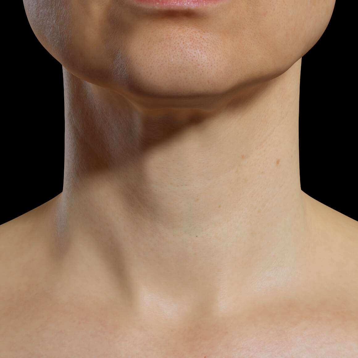 A female patient at Clinique Chloé facing front after mesotherapy treatments for the rejuvenation of the neck