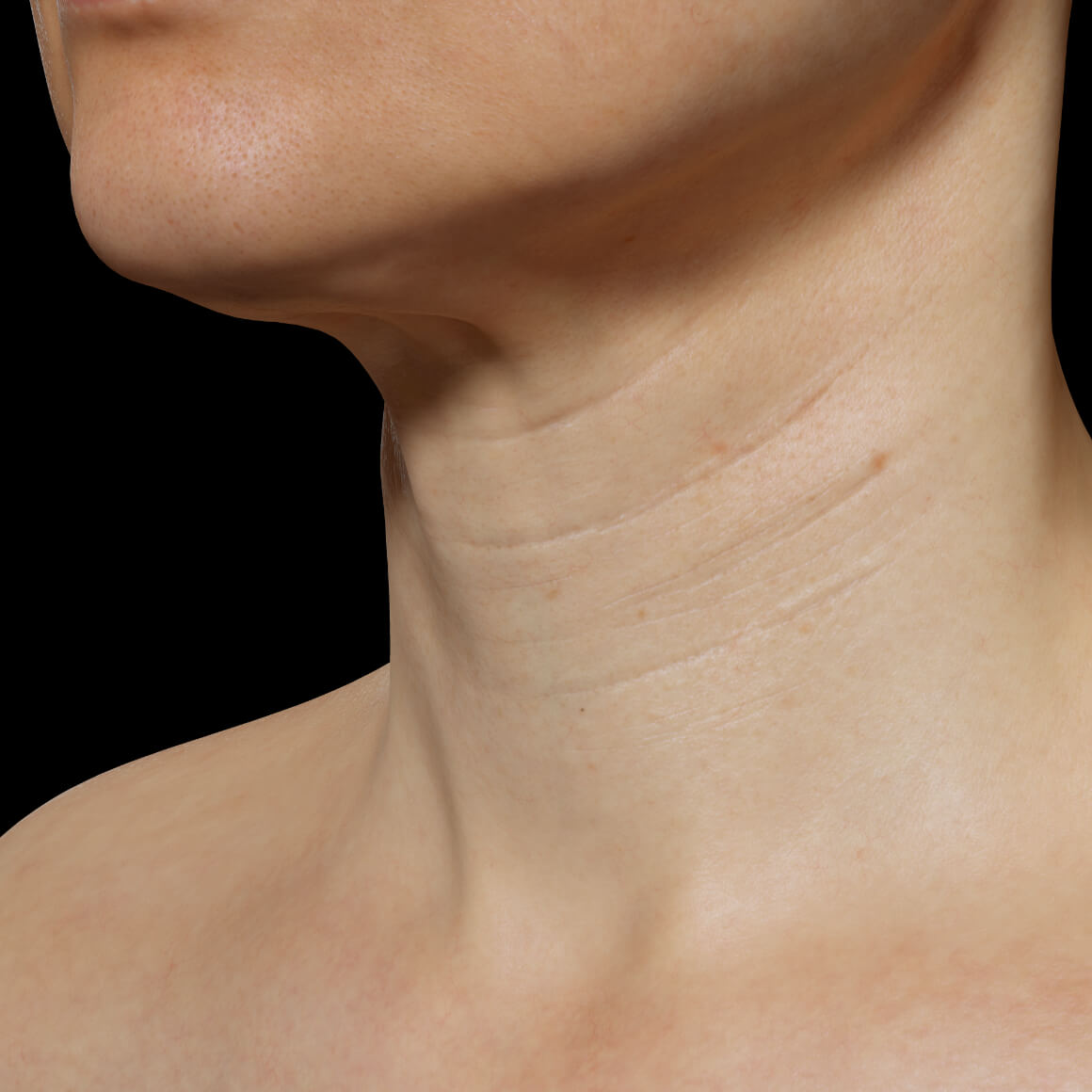 A female patient at Clinique Chloé positioned at an angle showing fine lines and wrinkles in the neck