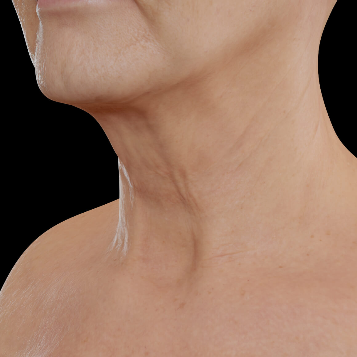 Female patient from Clinique Chloé positioned at an angle after neuromodulator injections in the neck area for skin firmness