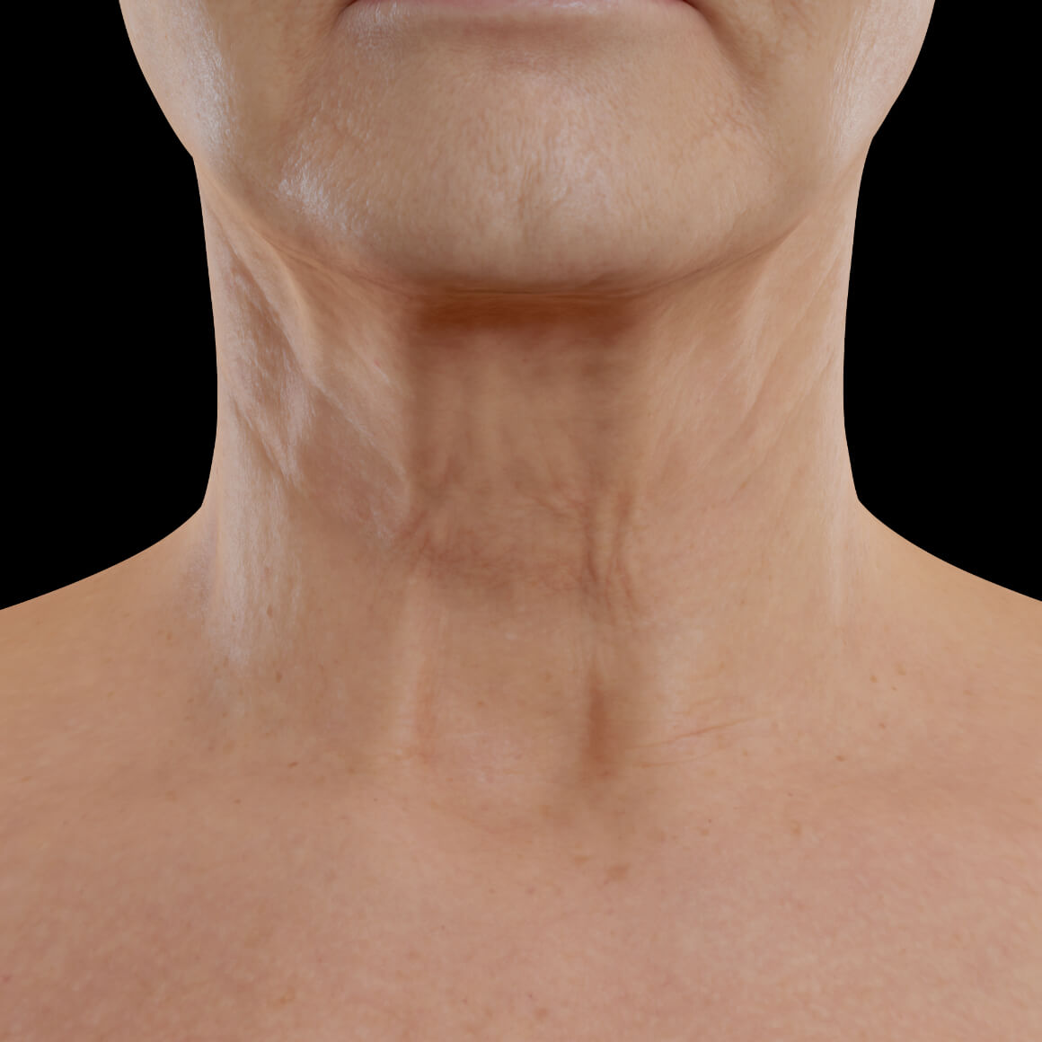 Female patient from Clinique Chloé facing front after neuromodulator injections in the neck area for skin firmness