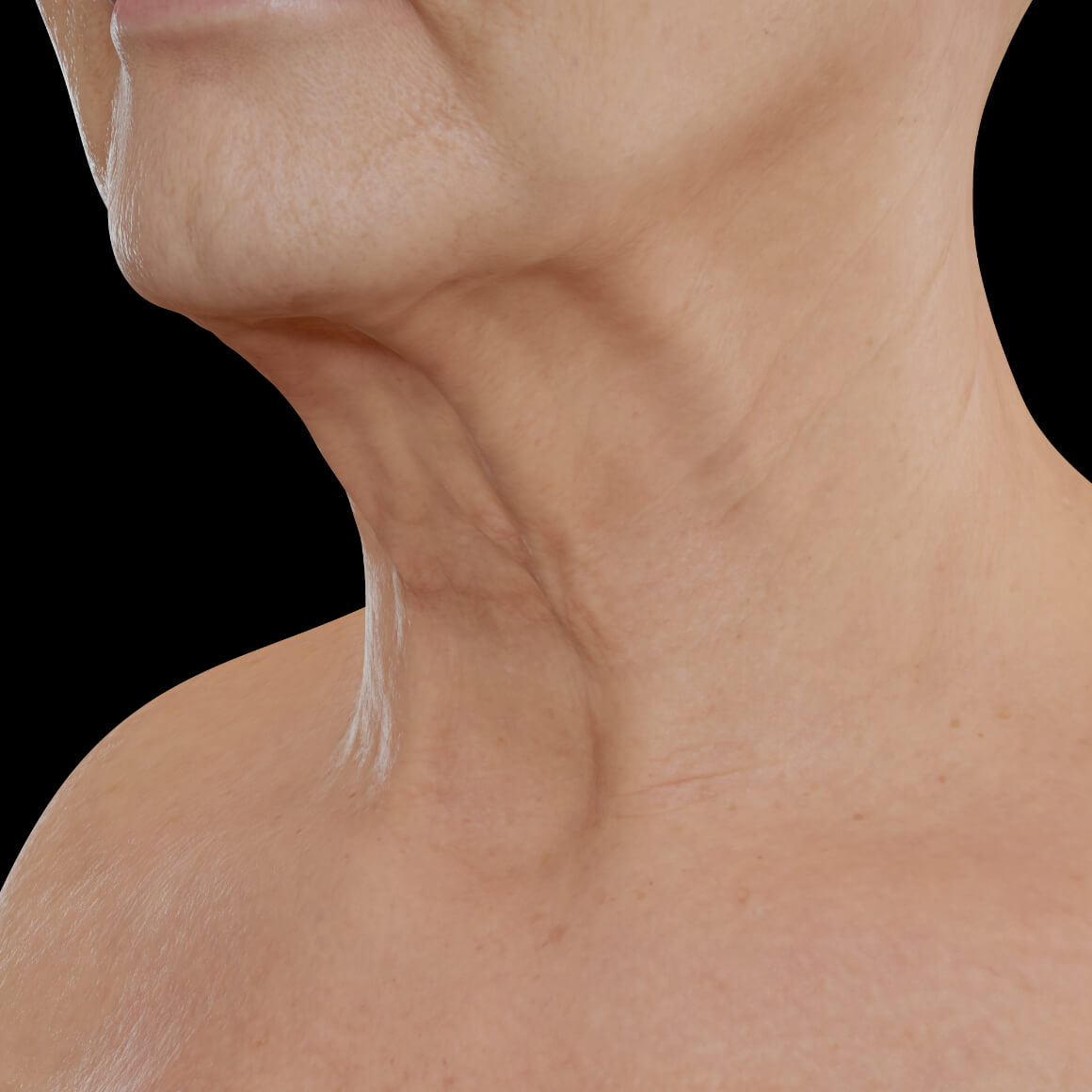 Female patient from Clinique Chloé positioned at an angle with wrinkles and noticeable platysmal cords in the neck area