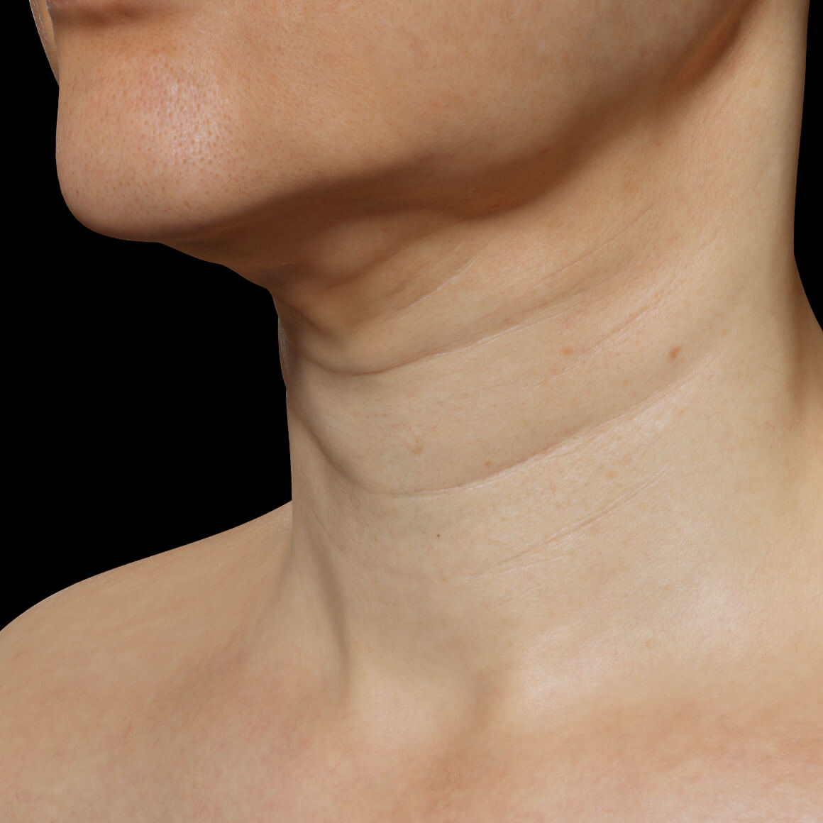 Female patient from Clinique Chloé positioned at an angle with wrinkles and sagging skin in the neck area