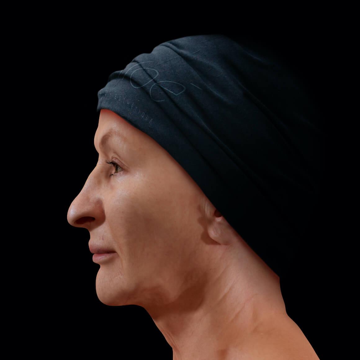 A female Clinique Chloé patient positioned sideways after an IPL photorejuvenation treatment for rosacea