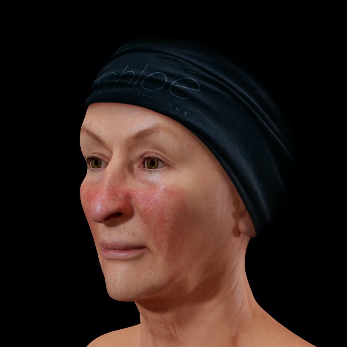 A female Clinique Chloé patient positioned at an angle showing rosacea on her nose and cheeks