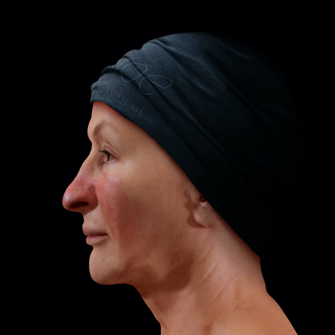 A female Clinique Chloé patient positioned sideways showing rosacea on her nose and cheeks