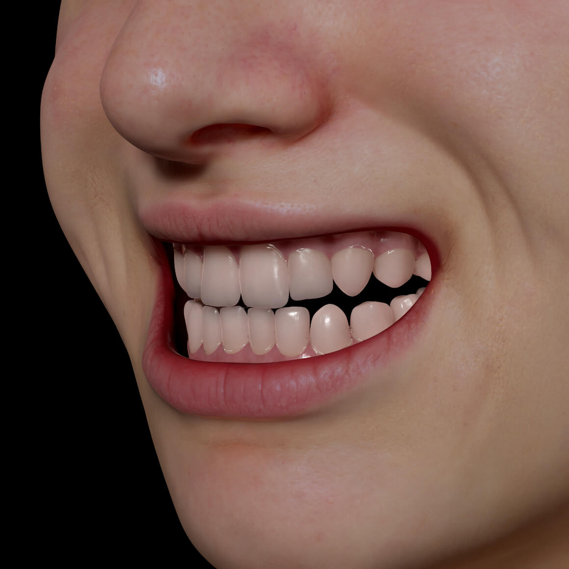 Smile of a Clinique Chloé patient positioned at an angle showing straight teeth after Invisalign teeth alignment treatment