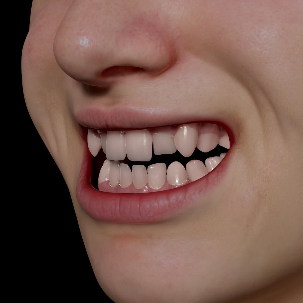 Smile of a Clinique Chloé patient positioned at an angle showing crooked and misaligned teeth