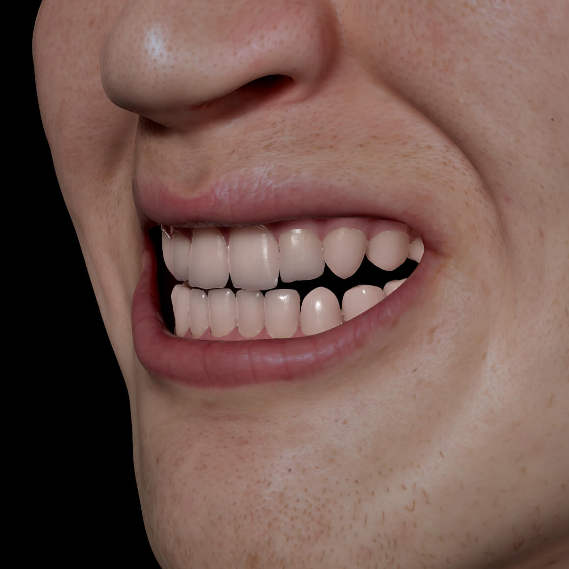 Smile of a Clinique Chloé patient positioned at an angle showing white teeth after a teeth whitening treatment