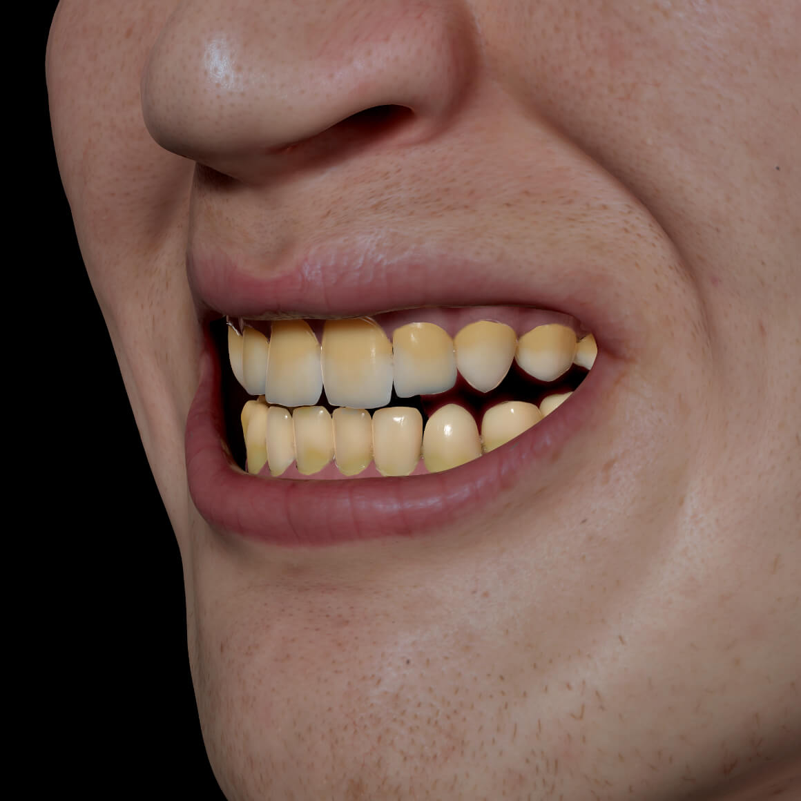 Smile of a Clinique Chloé patient positioned at an angle showing discolored, yellow teeth